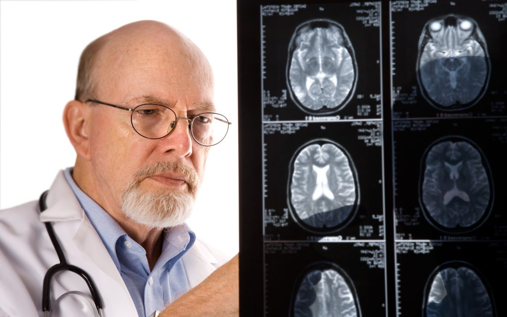 A doctor reviewing MRI films. (iStockphoto)