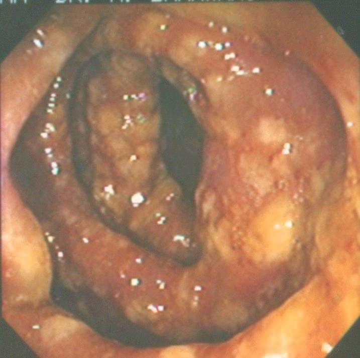 Photograph shows colon acutely inflamed - red, swollen with white patches of psuedo membranes. An extreme case of C.difficile colitis - also known as pseudomembranous colitis.