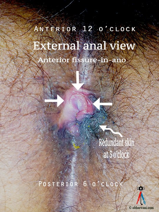 A clinical picture showing a case of anal fissure. (Dr. Noorali Bharwani)