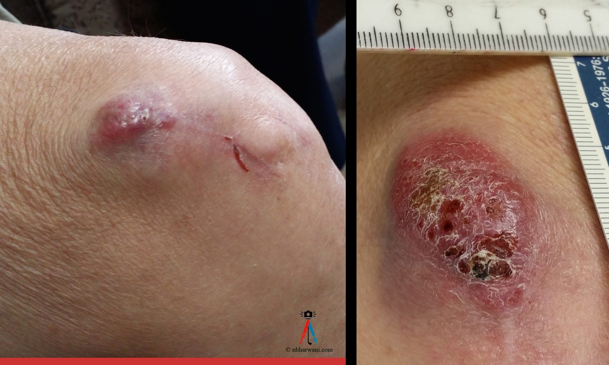 Left: Merkel cell carcinoma recurrence a few months after excision. Right: Progressive increase in size of recurrence over a few months. (Dr. Noorali Bharwani)