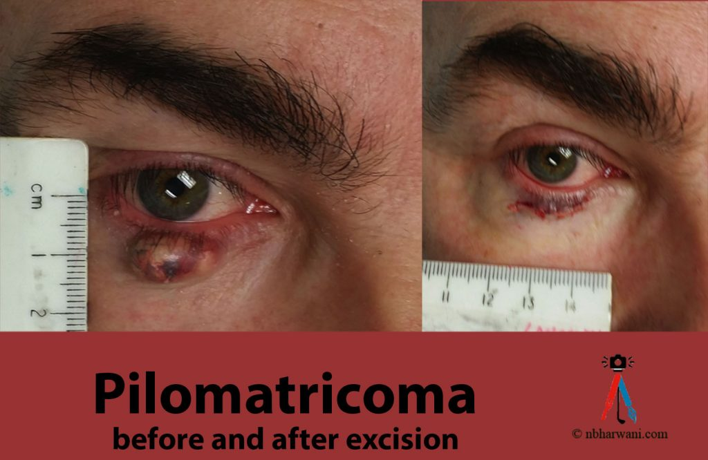 Pilomatricoma before and after excision. (Dr. Noorali Bharwani)