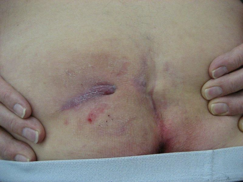 Example of pits and infection.