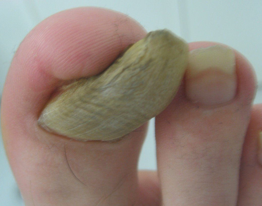Big Toe with Fungal Infection.