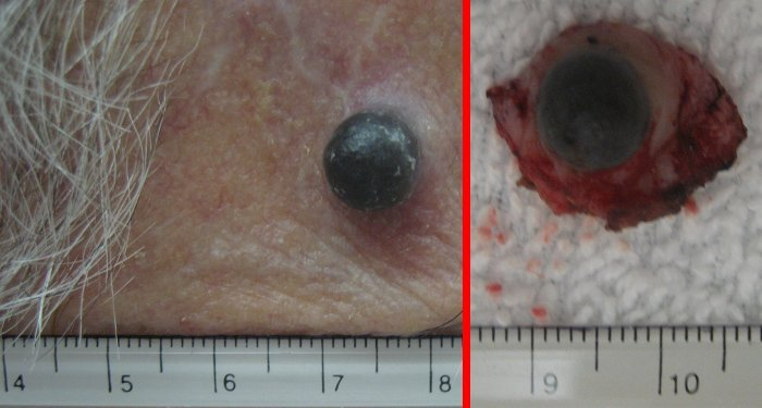 Example of recurrent melanoma.