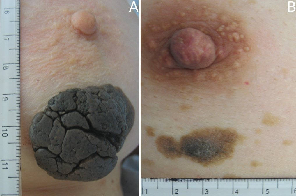 Skin Blemish of Breast